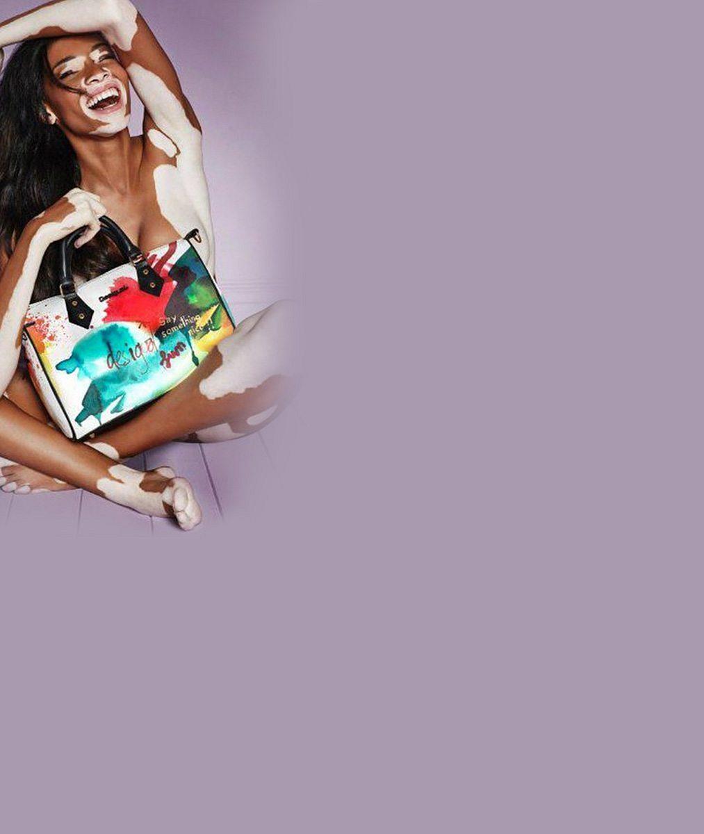 Vitiligo se zabydluje v modelingu: Po úspěchu Winnie Harlow je tady skvrnitý model