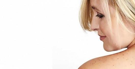 S krásou souvisí i prevence. Chraňte se před melanomem