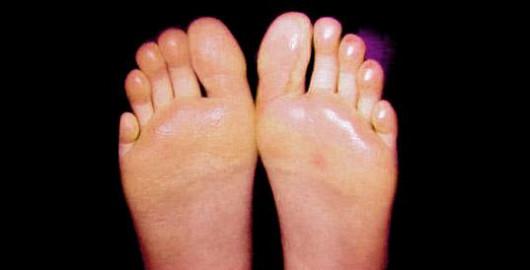 Trápí vás pocení nohou?