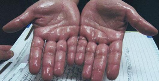 Trápí Vás pocení rukou?