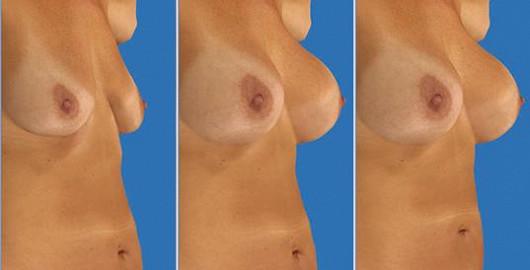 Co dělá prsa krásnými? Je to velikost, tvar, proporce vůči celému tělu?