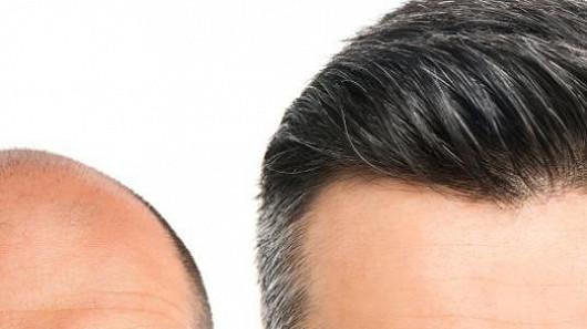 Prokazatelné účinky proti dědičnému vypadávání vlasů