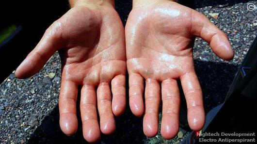 Konec pocení rukou = Electro Antiperspirant