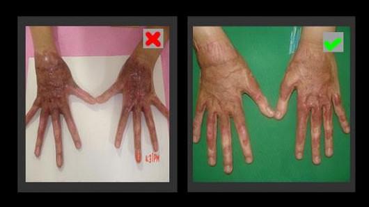 Rychlá regenerace a tvorba nových kožních buněk díky emu oleji!