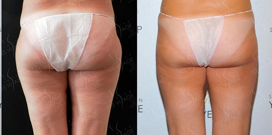 SlimLipo - laserová liposukce
