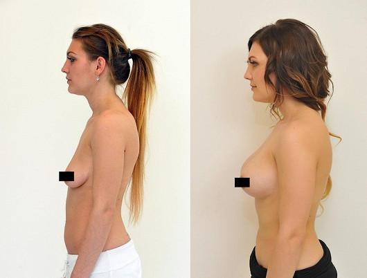 Jak na dokonalá prsa?