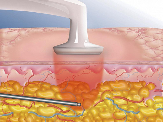 Je jen jedna liposukce, která umí odsát tuk i vypnout kůži