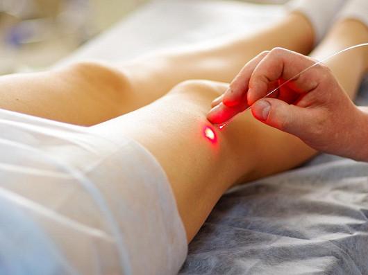 Jak probíhá léčba moderní léčba křečových žil? Bez jizev, bolesti a dlouhého hojení.
