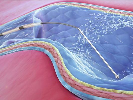 Laser vás zbaví křečových žil s 98% úspěšností