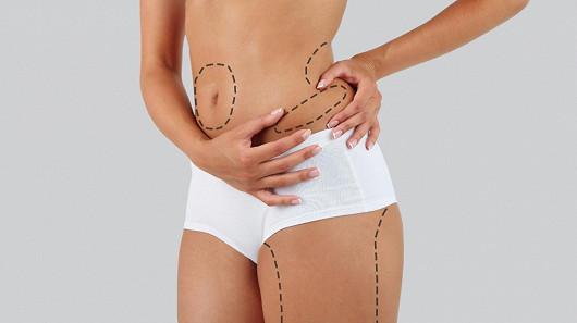 Po liposukci chtějte nejen štíhlejší, ale i pevnější tělo