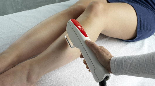 Bolí laserová epilace?
