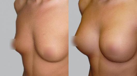 Proč je váha prsních implantátů důležitá?