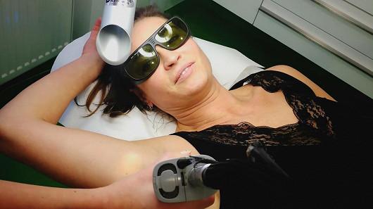 Pro koho je laserová epilace? Hanka Kynychová, Ina T. a tisíce žen každý rok