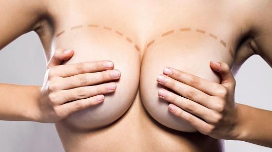 Jak se vyznat v prsních implantátech? Liší se vůbec?