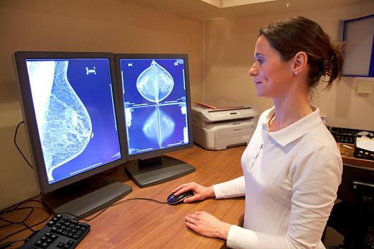 Třetí mýtus: Stlačení prsu může vyvolat rakovinu