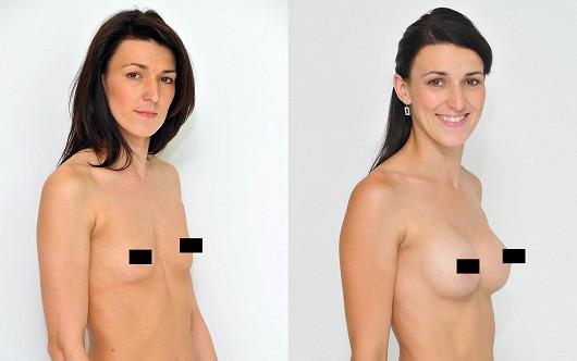 Nové sebevědomí s novými prsy