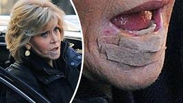 Slavná Jane Fonda (80) se na veřejnosti objevila s náplastí pod spodním rtem.