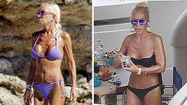 Donatella Versace v roce 2008 (vlevo) a dnes...
