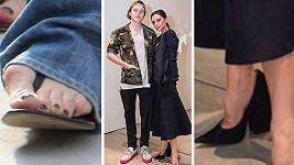 Victoria Beckham si vysokými podpatky zničila nohy.