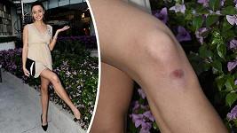 Devatenáctiletá Lucie Dušková se zranila pár minut po příletu.