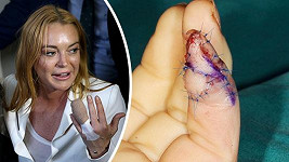 Prst Lindsay Lohan se bude ještě dlouho hojit...