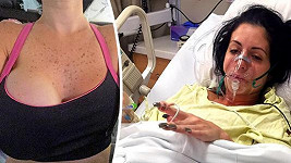 Ženě zachránilo život odejmutí prsu.