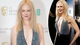 Nicole Kidman odvaha nechybí.