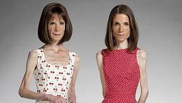 Dvojčata trpící přes dvacet let anorexií. Maria (vlevo) a Katy Campbellovy.