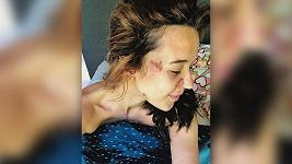 Tamara Klusová se nepříjemně poranila.