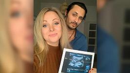 Katka Říhová a její muž Michael se těší na první dítě.
