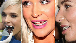 Kdo musel navštívit ortodontistu?