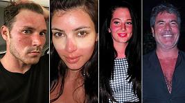 Celebrity, které to přehnaly na sluníčku