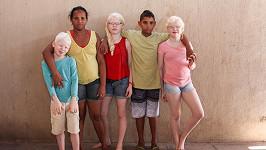 Unikátní rodina se třemi albínskými dětmi.