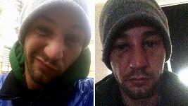 Sámer Issa má po rvačce monokla a naražený nos.