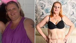 Britka Nicky Codrai (42) z Rotherhamu v jižním Yorkshiru trpěla závislostí na slazených nápojích.