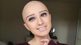 Alopecie jí dostihla přesně ve věku, kdy začínají mít dívky plnou hlavu chlapců