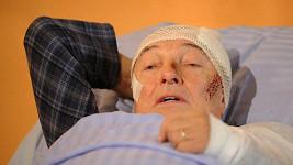 Karla Gotta je snad nezranitelný. Takhle vypadal jen při natáčení seriálu.
