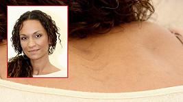 Lejla Abbasová má podivné řezné rány na zádech. O co jde?