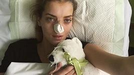 Zmožená bolestí s ofačovaným nosem a kruhy pod očima.