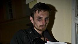 Fotograf Blesku Martin Hurda po údajném napadení Rodenem.