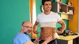 Petr Vojnar má dva týdny po liposukci břicha.