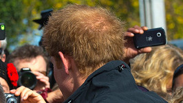 Princ Harry se rovněž bude potýkat s řídnoucími vlasy.