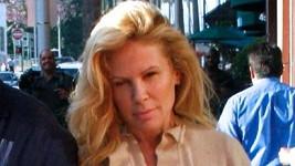 Opuchlá Kim Basinger po botoxovém vyhlazení vrásek.