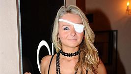 Nová přítelkyně Michala Červína nemá oko.