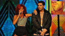 Drake s Rihannou. Ve výřezu zranění Chrise Brown.