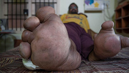 Arun Rajasinght trpí vzácnou genetickou vadou, na niž lékaři neznají lék.