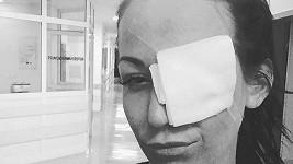 Agáta Prachařová řešila problém s okem.