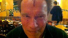 Arnold Schwarzenegger ukázal šokující šrám na hlavě.