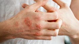 Kosmetika Herbo Medica