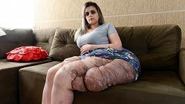 Karina Rodini trpí onemocněním zvaným neurofibromatóza.